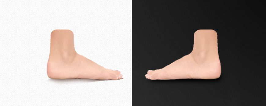 One podiatrist says white and another says black